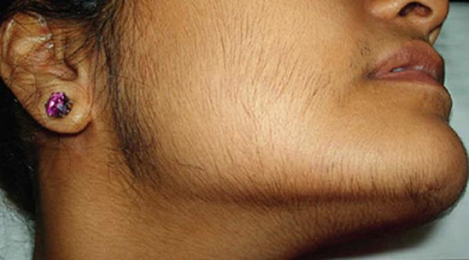 женский половой орган с волосным покровом онлайн бесплатнно фото