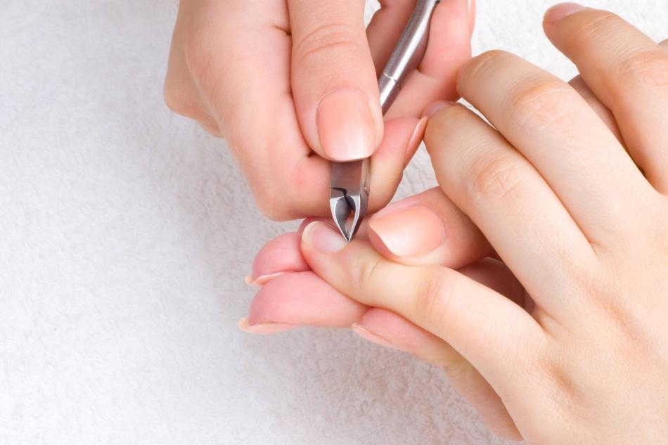 Что делать если на ногтях рук появился грибок