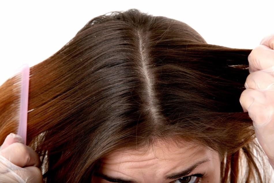 Как в домашних условиях избавится от перхоти жирных волос