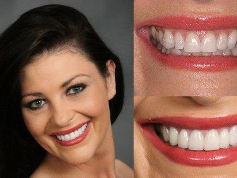 Фото зубов красивых до и после