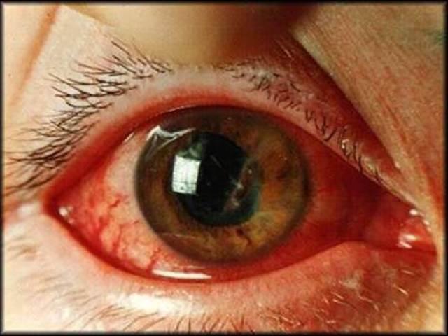 Кровоизлияние в глаз при сахарном диабете причины
