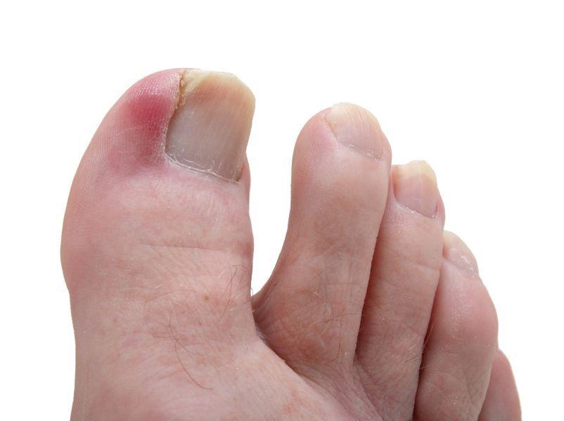 Ноготь отходит от пальца на руке причины лечение