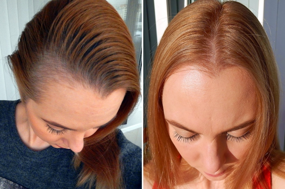 Дарсонваль для роста волос отзывы фото