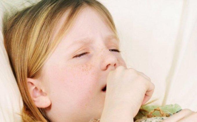 Приступ ларингита у ребенка