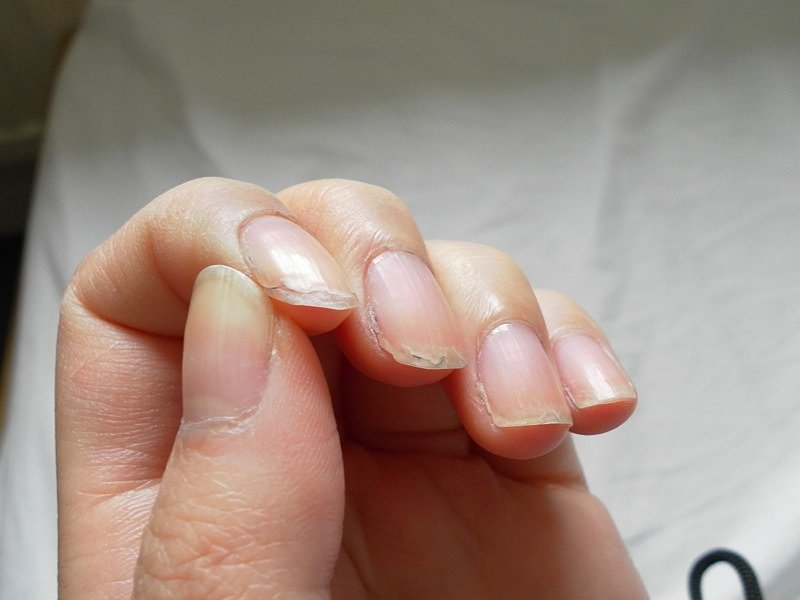 Слоятся ногти как лечить в домашних условиях