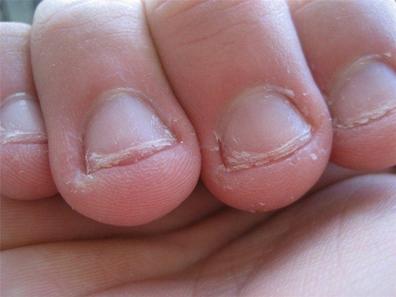 Поврежденные ногти