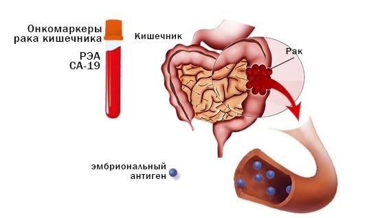 Онкомаркеры крови для мужчин