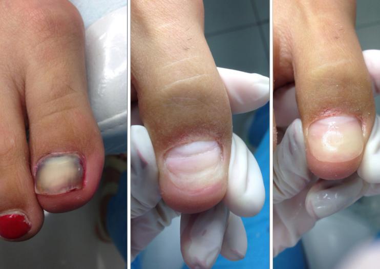 После создания ногтевой пластины ноготь шлифуется и не отличается от натурального