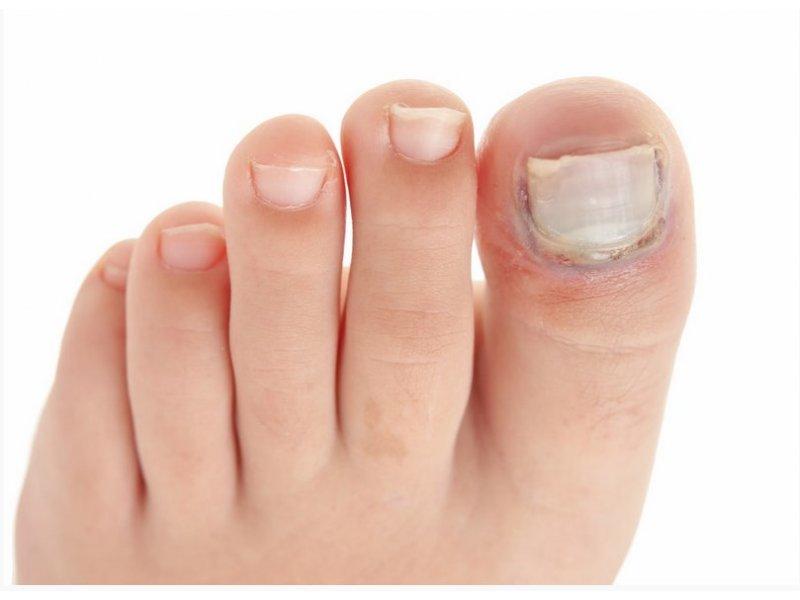 При ушибе ногтя необходимо выпустить кровь - иначе ноготь отслоится