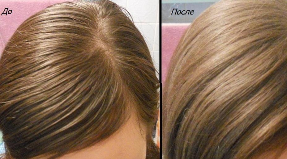 Фото жирных волос до и после применения ополаскивающих отваров из трав
