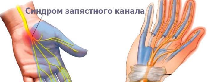 Тоннельный синдром правого запястного (карпального) канала кисти руки