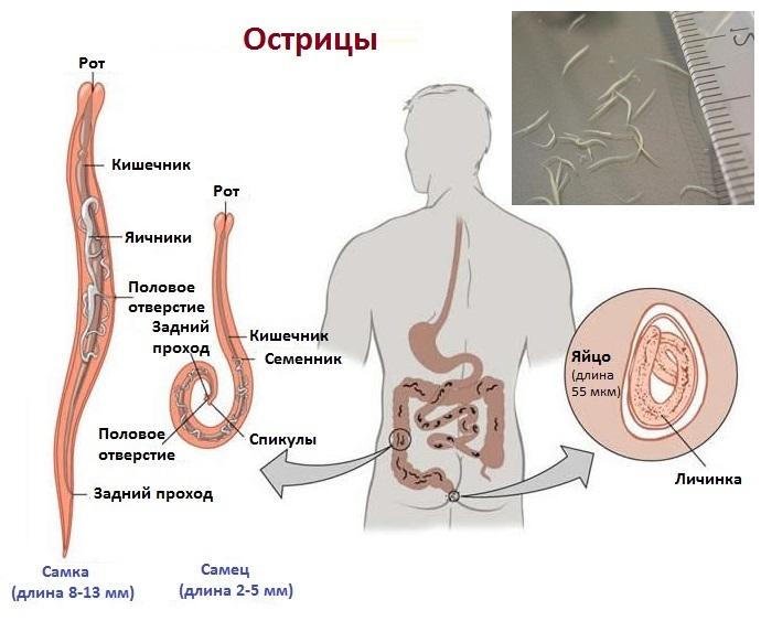 Острицы - один из наиболее широко известных видов паразитов человека.