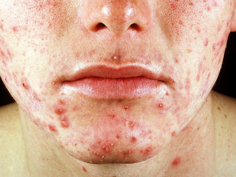 Акне на лице. Как лечить акне при проблемной коже?