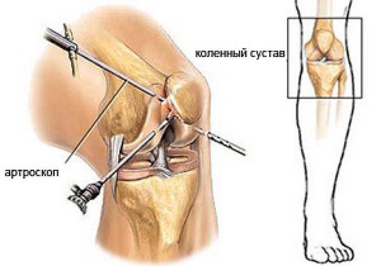Артроскопия кс