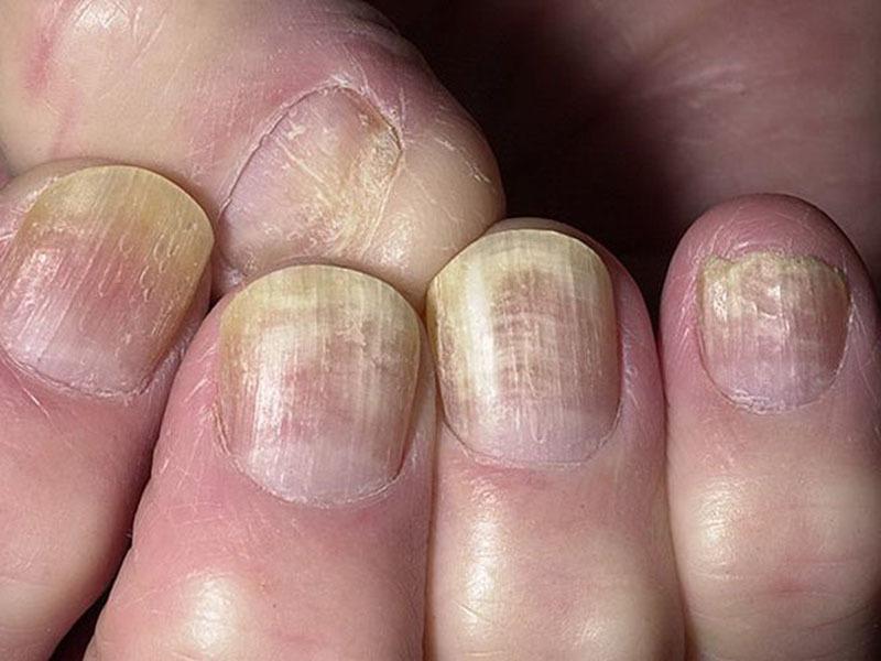 Отрастить и укрепить ногти быстро после грибка