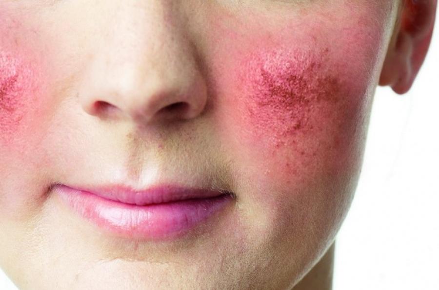 Чтобы очистить лицо от телеангиэктазий обычно применяют лазер