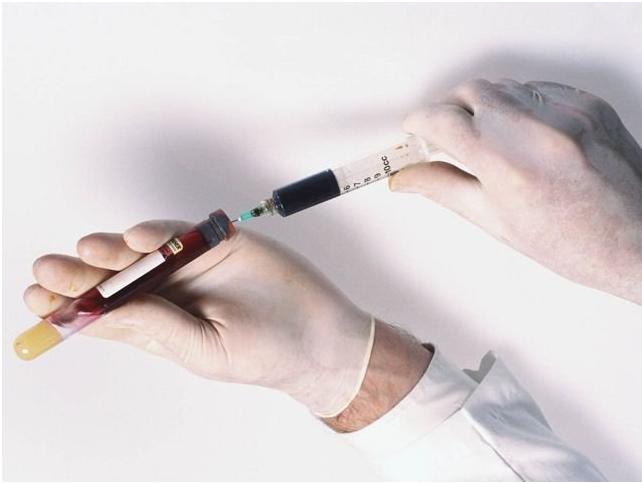 Взятие анализа на антимюллеров гормон