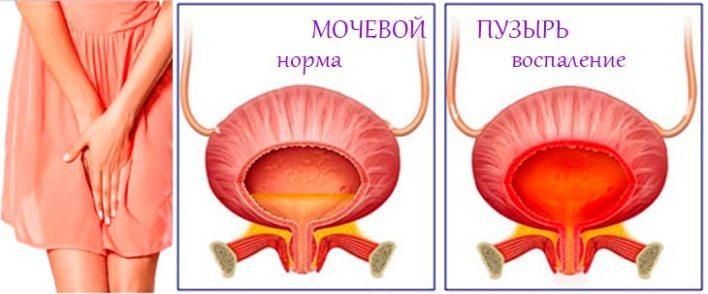 Недержание мочи у женщин при заболеваниях мочевого пузыря