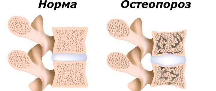 Болит позвоночник при остеопорозе после сна