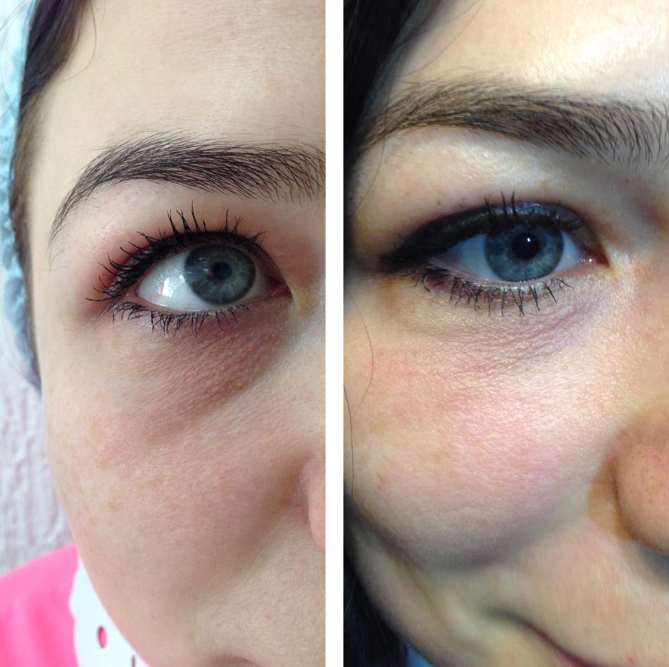 Виктория бутенко фото до и после антабкам прикладе