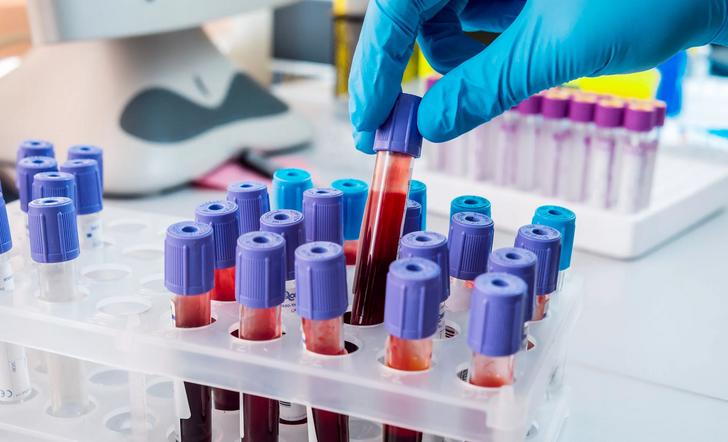 Анализы — метод диагностики появления субфебрильной температуры
