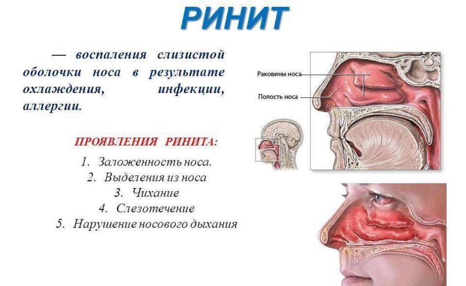 Воспаление