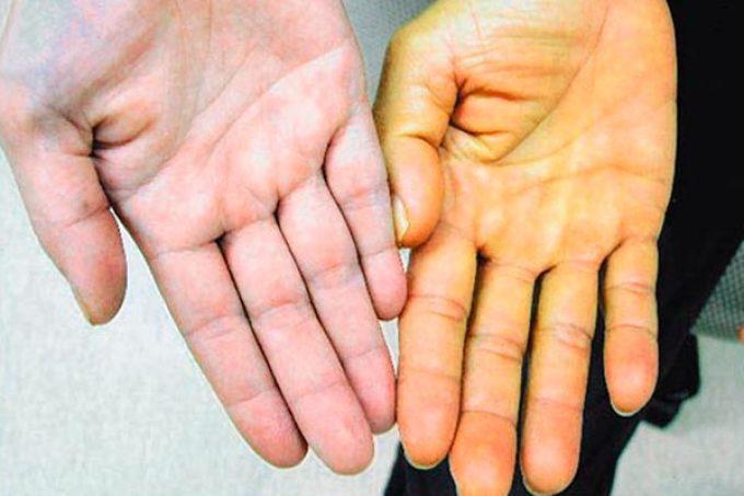 Бледность и сухость кожи - верный признак дефицита витамина а