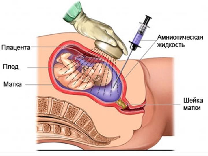 Забор околоплодной жидкости для анализа
