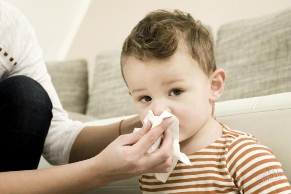 Лечение аденоидов в домашних условиях