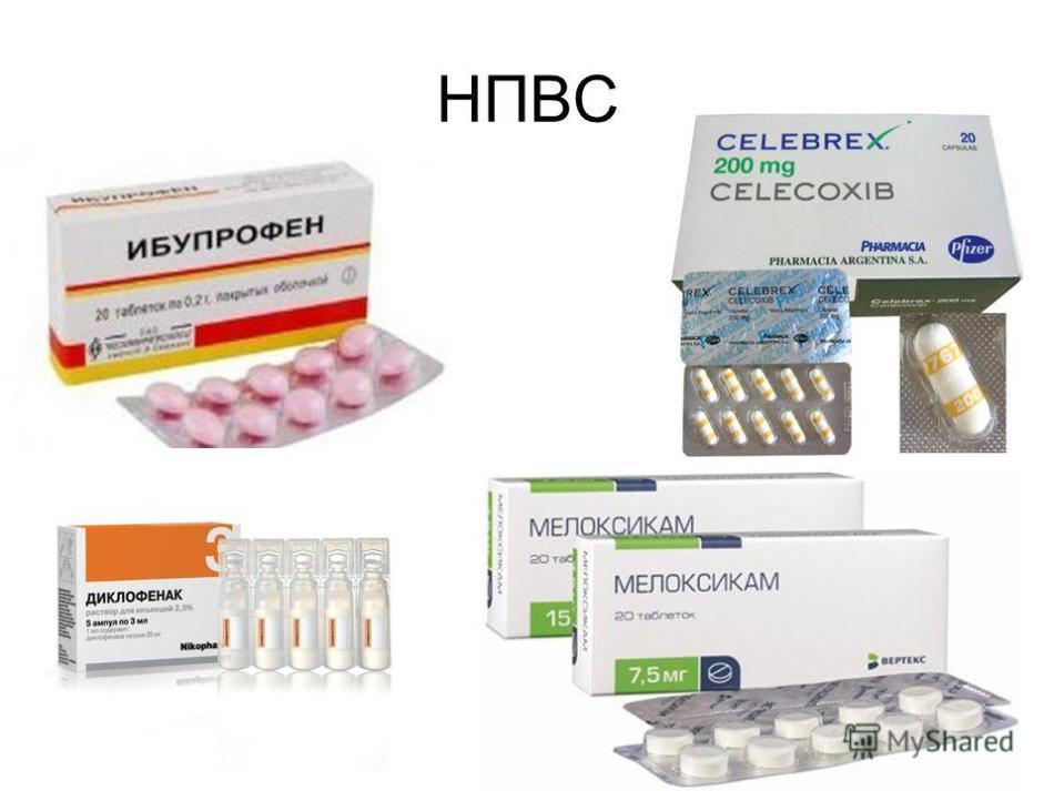 Лечение нестероидными препаратами