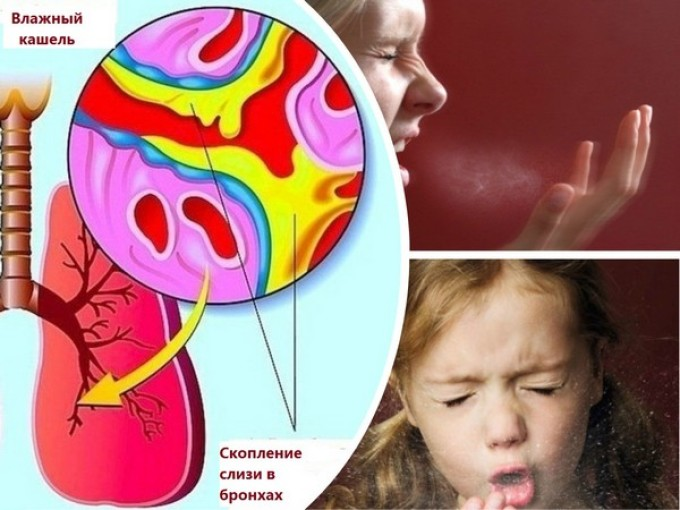 Кашлем организм очищает дыхательные пути от скопившейся в ней мокроты.