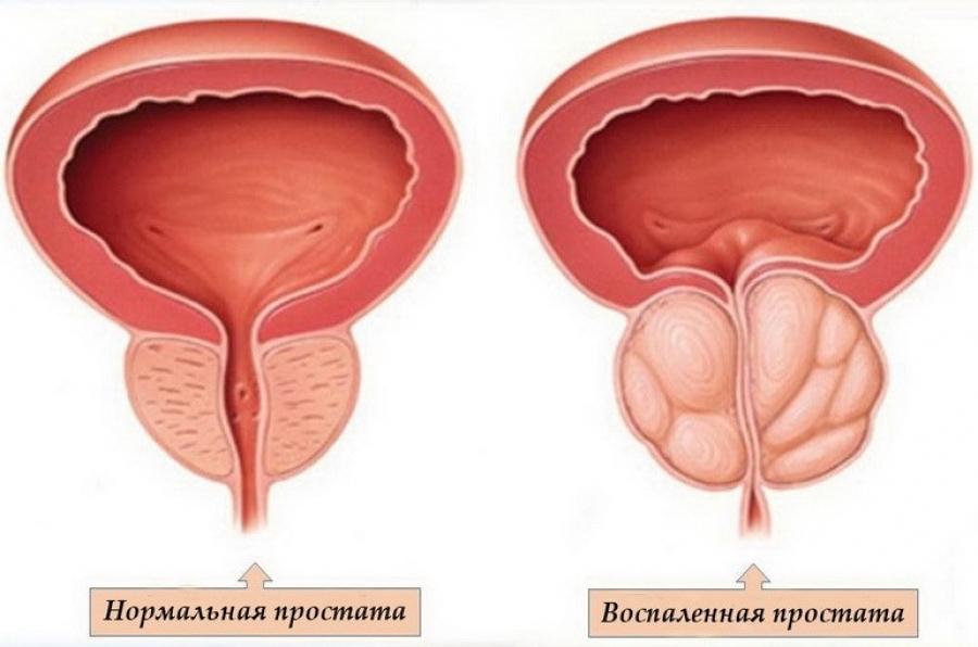 Воспаление простаты часто имеет бактериальную природу.