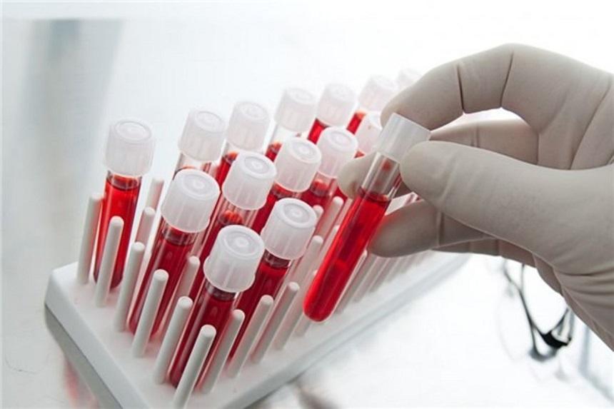 Если вич отрицательный, может ли быть спид, вырабатываются ли антитела вич в стадии спида?