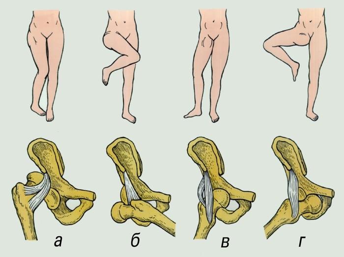Подвижность тазобедренного сустава человека.