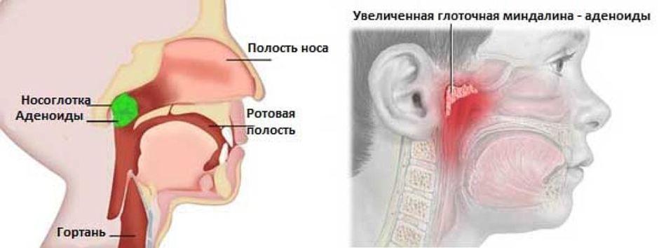 Лечение аденоидов настойкой личинок восковой моли