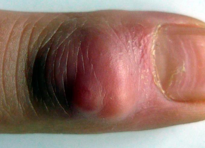 Симптомами панариция являются боль, сильный отек и покраснение кожи на пальце.