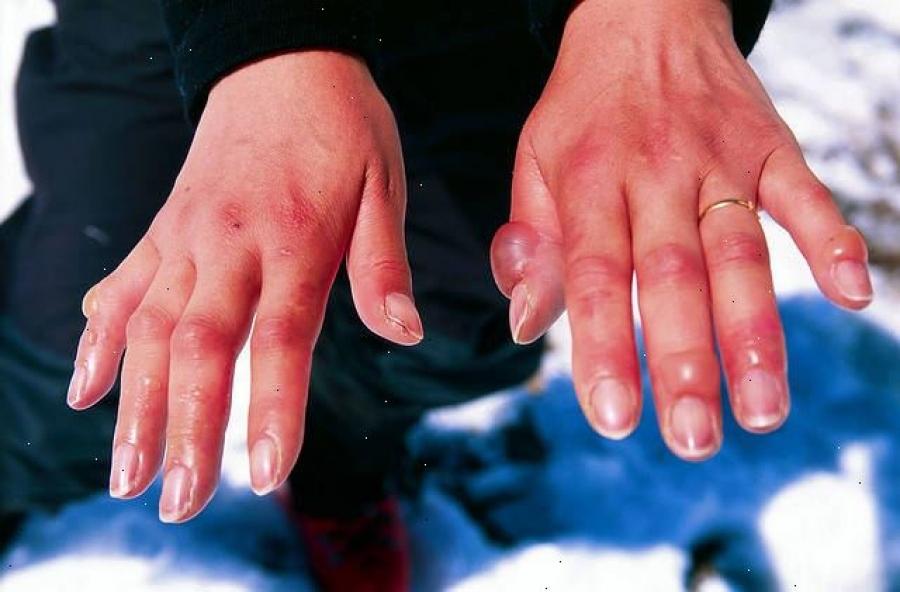 Обморожение рук второй степени тяжести.