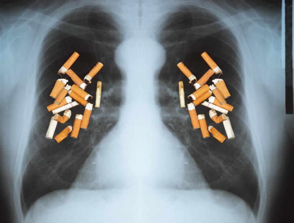 К сожалению,полное восстановление бронхов и легких после отказа от курения возможно не всегда.