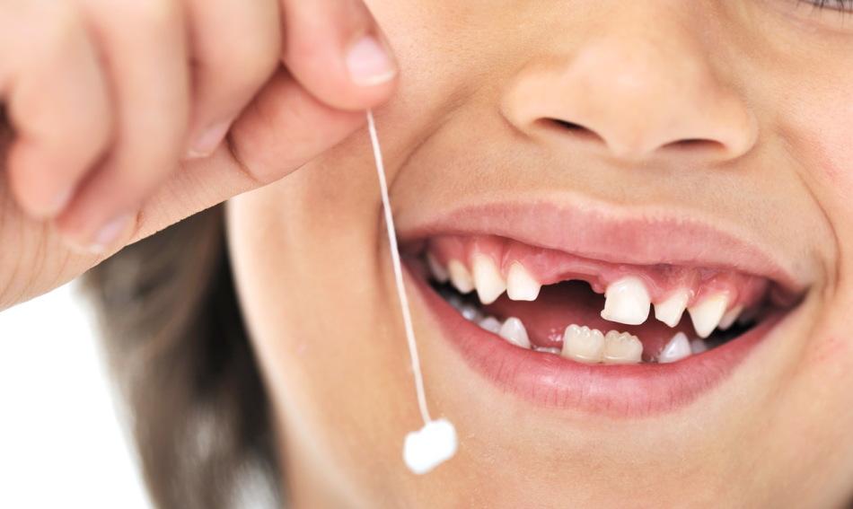 Кариес постоянных зубов может начаться с кариеса зубов молочных