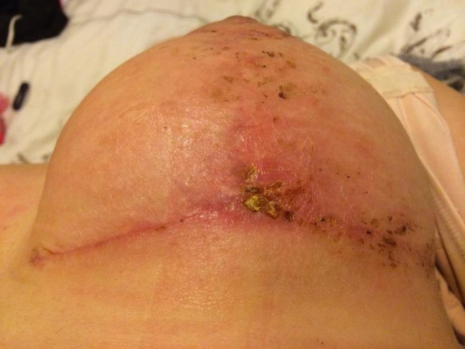 Как лечить свищ после операции