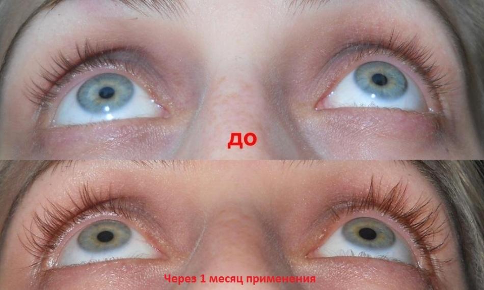 популярностью пользуются карепрост отзывы фото до и после признается звезда