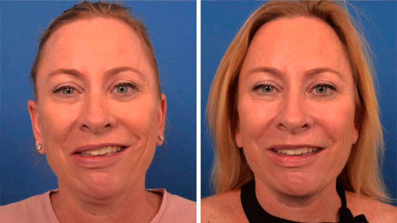 Ассиметрия лица после ботокса