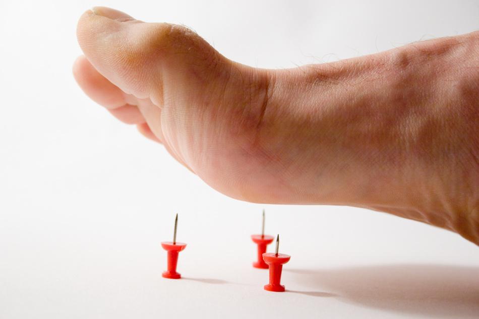 Онемение ног может быть симптомом алкогольной и диабетической полинейропатии