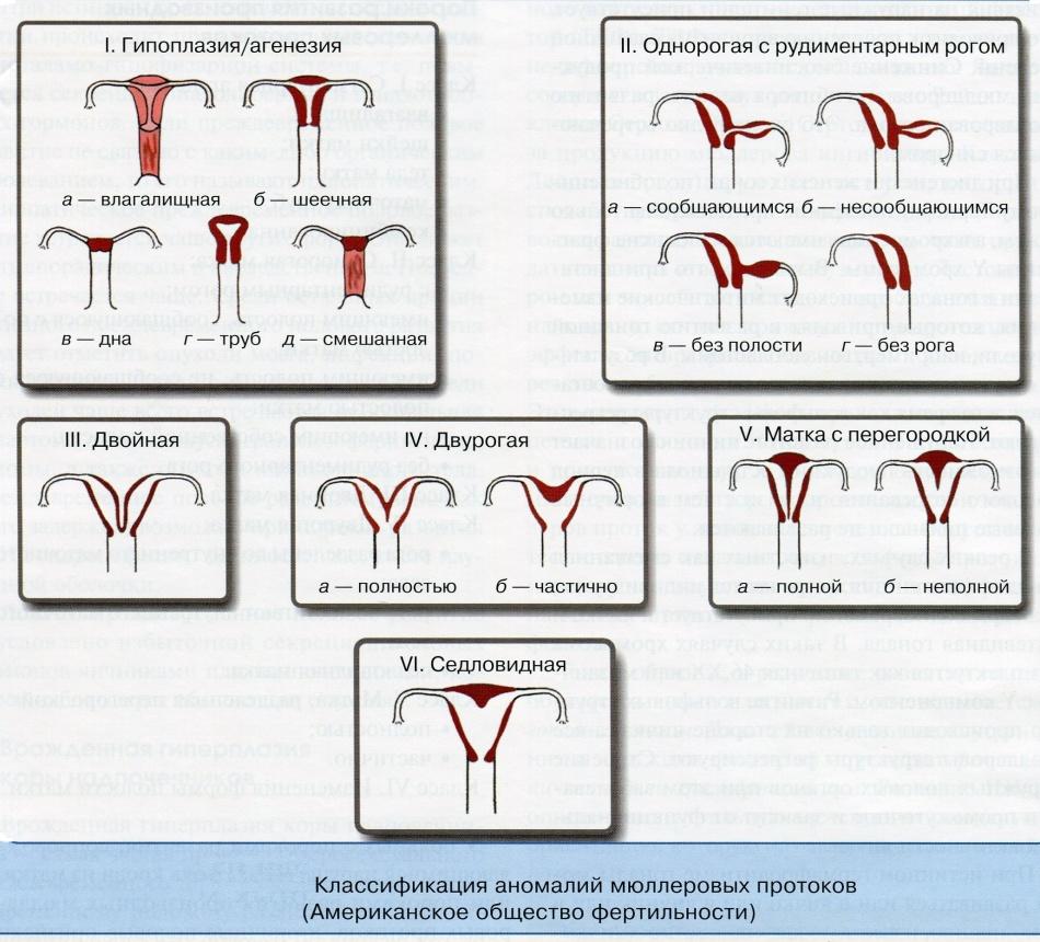 Особенности строения матки и угроза выкидыша