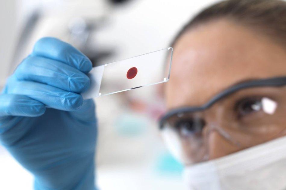 Сотрудник лаборатории изучает кровь на хгч