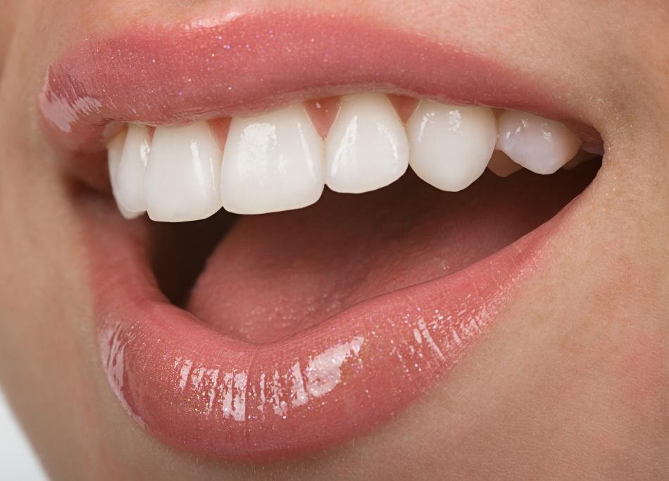 Красивые белоснежные зубы
