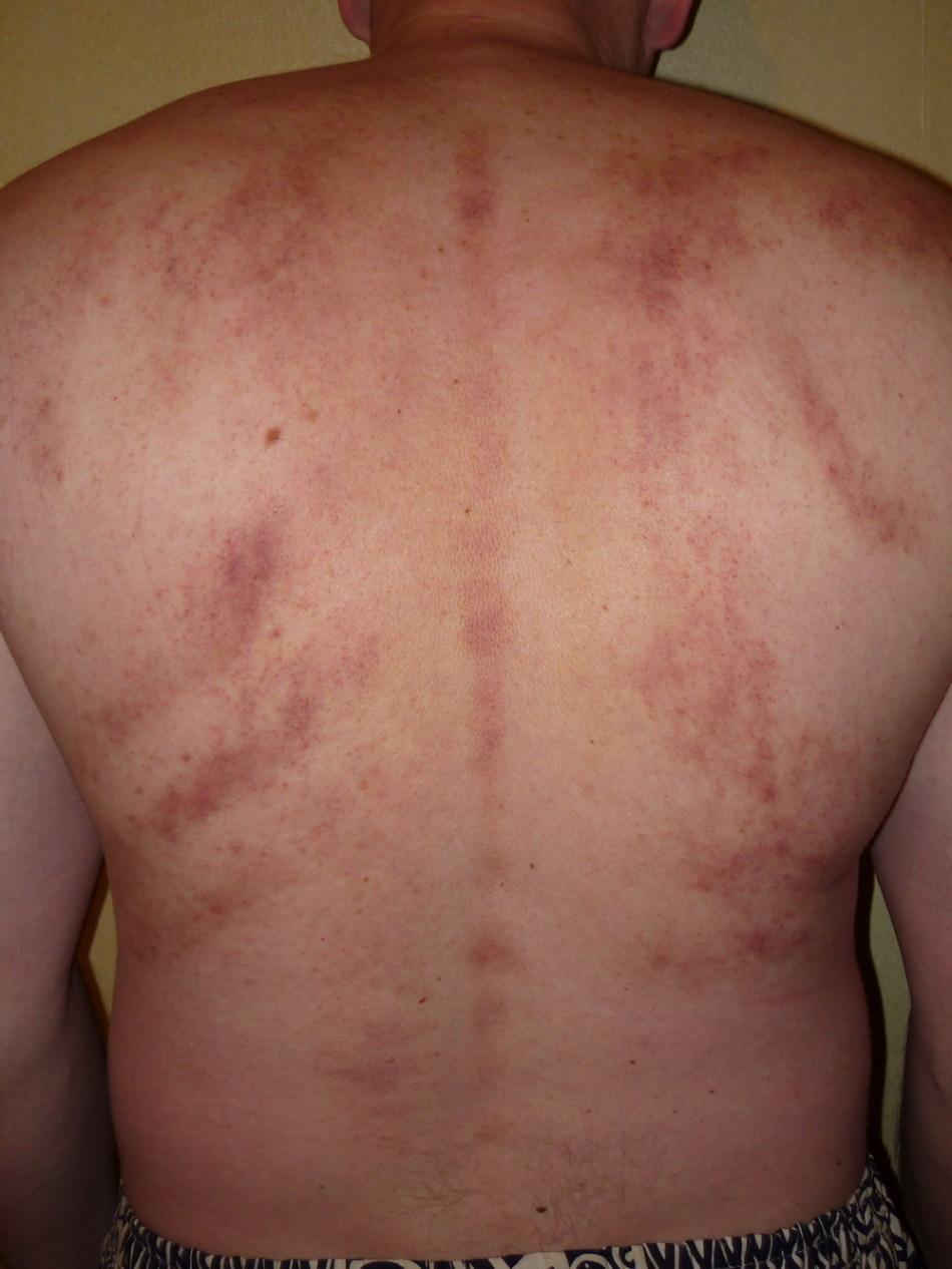 Прыщи на спине после массажа