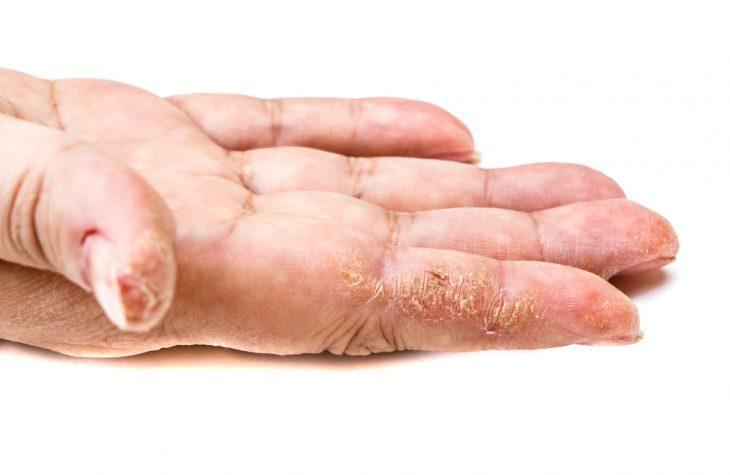 Трещины и шелушение
