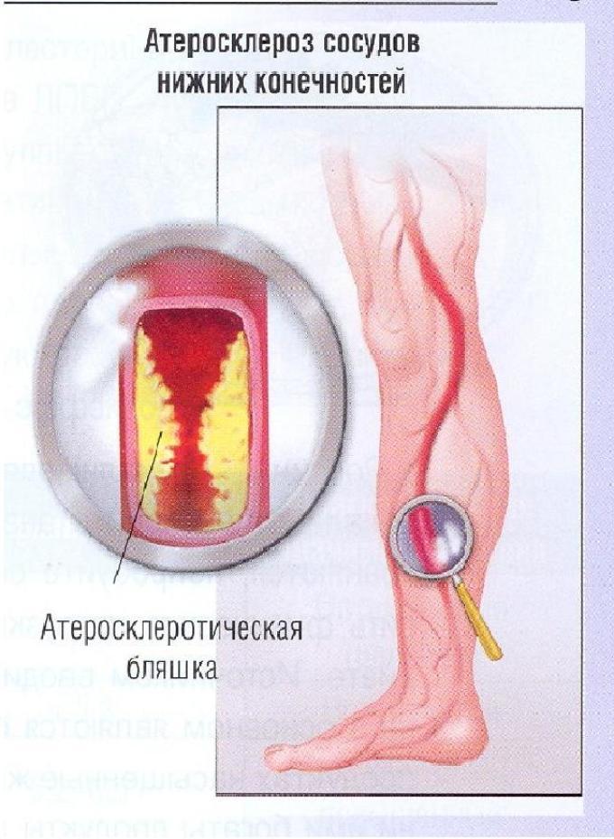 Атеросклероз-сосудов-нижних-конечностей-лечение
