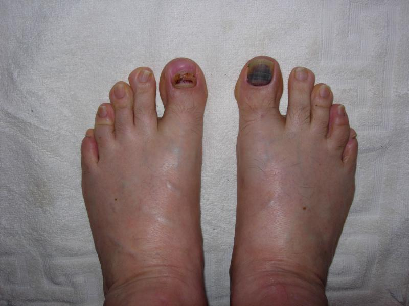 Если гематома при ушибе ногтя стала черной - обратитесь к врачу